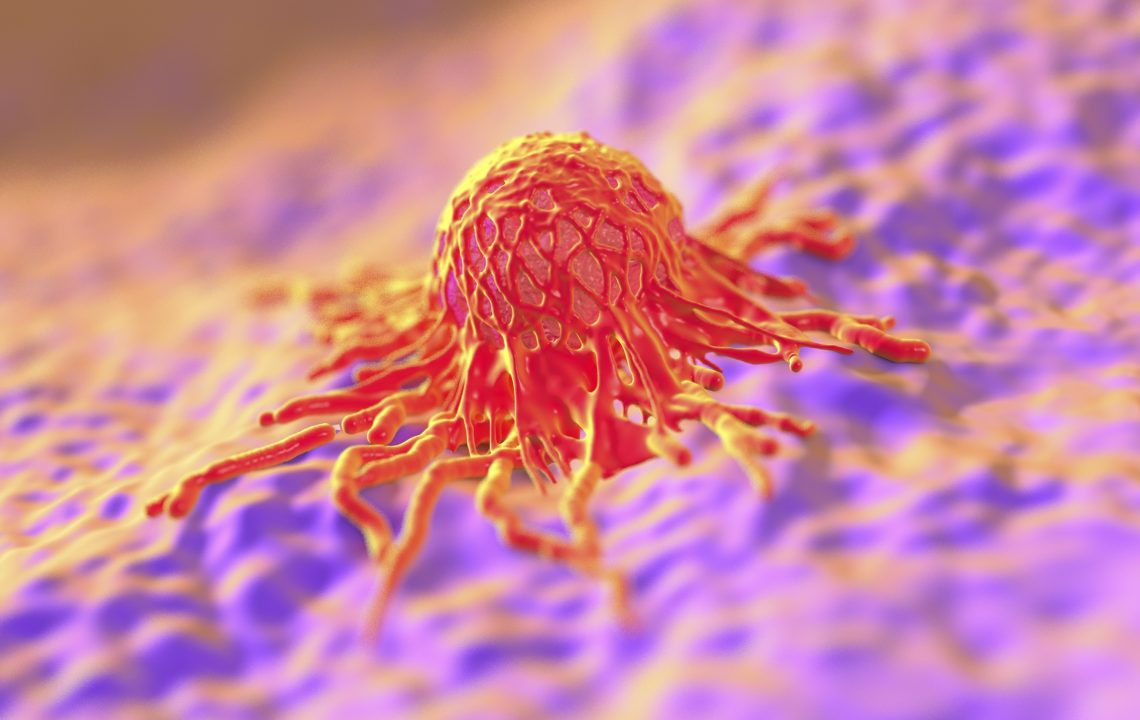 سنسور های بسیار کوچکی که سرطان را زودتر تشخیص می دهند!!