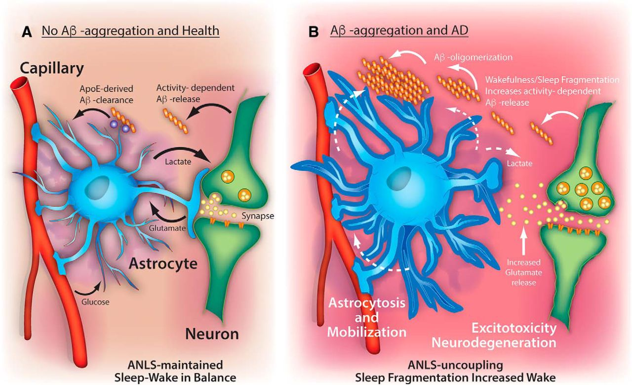 مشکلات خواب و بیماری آلزایمر