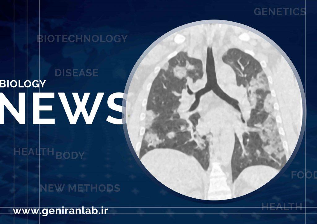 تشخیص زود هنگام کروناویروس