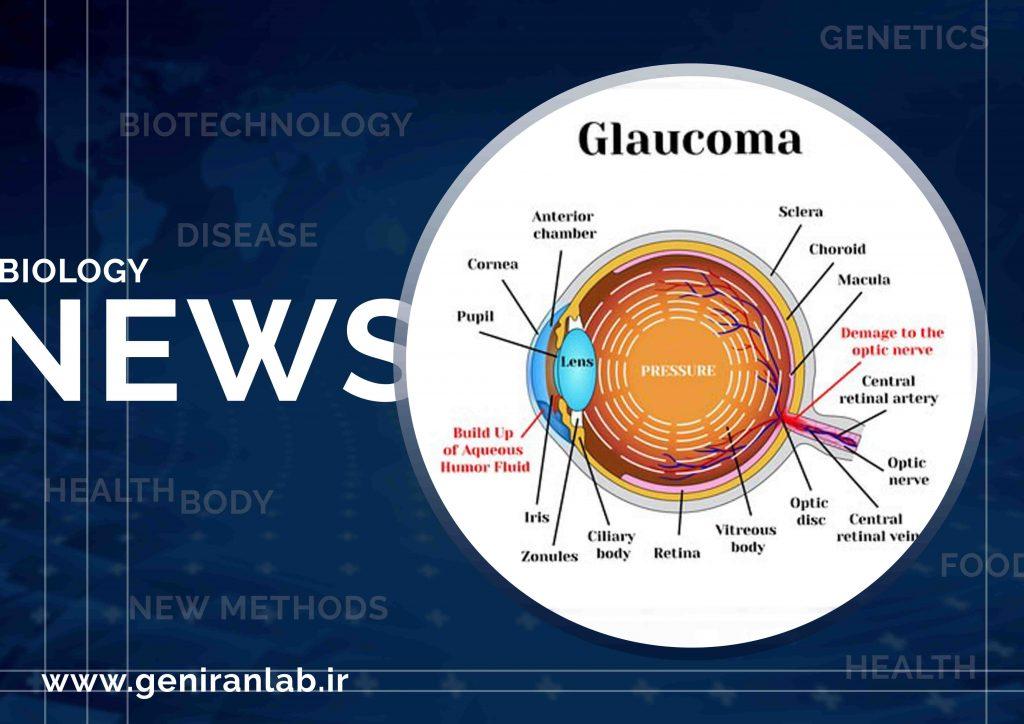 محققان علت ژنتیکی منجر به گلوکوم (glaucoma) را کشف کردند